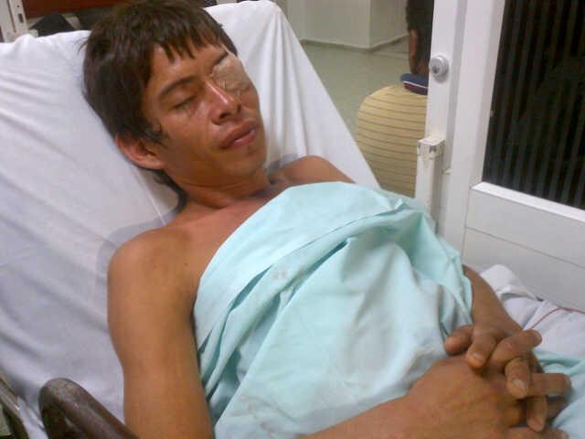 Médicos del HUV le salvaron el ojo a hombre apuñalado