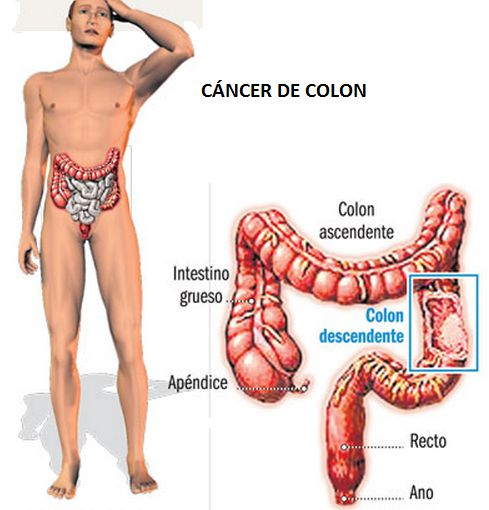 El cáncer de colon se puede prevenir y detectar a tiempo