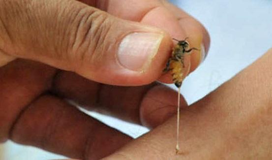 Picaduras de abejas con fines curativos cautiva a los chinos