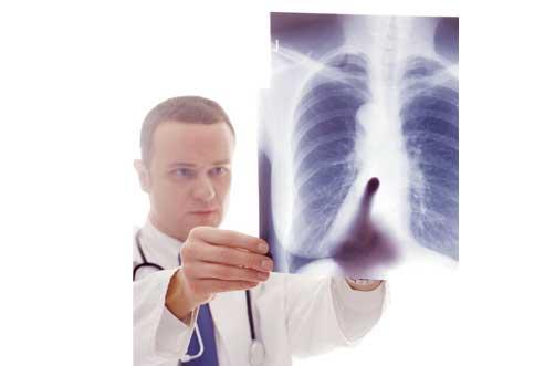 Cuando respirar es imposible: qué es la fibrosis quística