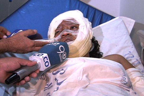 Hincha del Cali sobrevivió a un ataque con bomba incendiaria