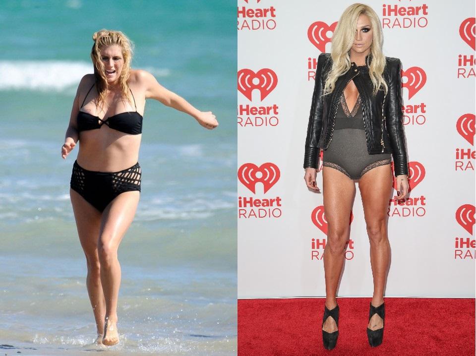 Kesha recurre a centro de rehabilitación por su desorden alimenticio