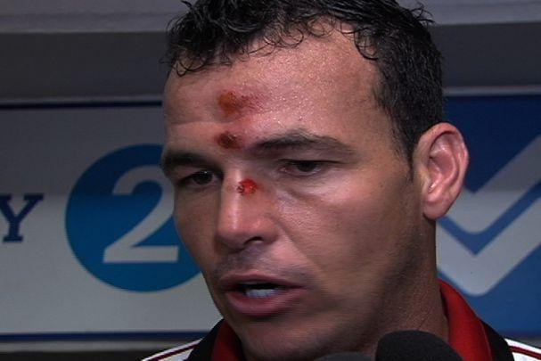 Viera recibió un fuerte golpe durante el encuentro frente al Quindío