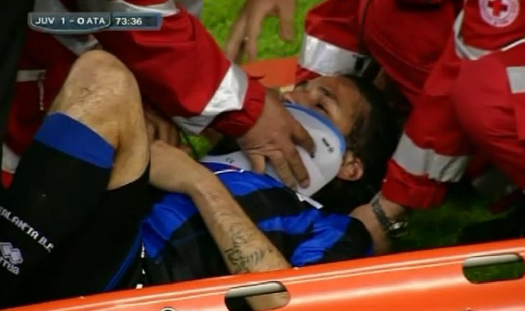 Mario Alberto Yepes salió lesionado en juego del Calcio contra la Juventus