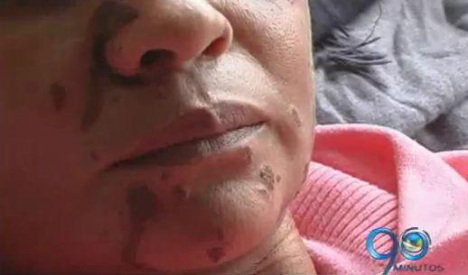 Atacan con ácido a una mujer en Pasto