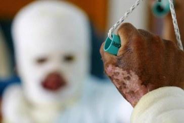 Aumentó el número de quemados con pólvora en toda Colombia