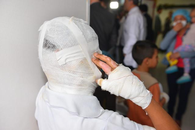 La lista de quemados por pólvora en Colombia ya va en 644