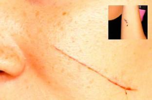Una mujer fue atacada con una cuchilla de afeitar en Cali