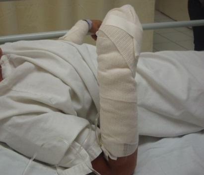 Menor de 13 años perdió una mano en explosión de pólvora