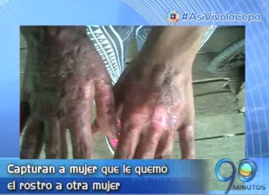 Policía capturó mujer sindicada de quemar el rostro a otra mujer
