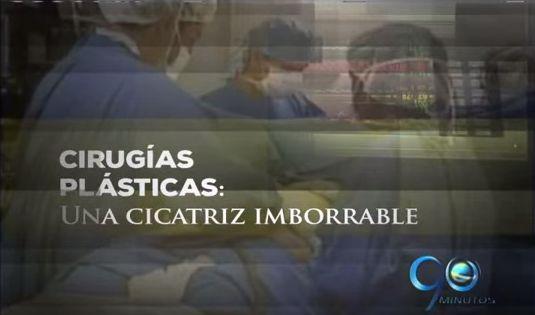 Especial: Cirugías Plásticas, Una Cicatriz Imborrable (2a. parte)