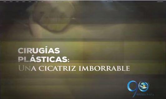 Cirugías Plásticas, Una Cicatriz Imborrable