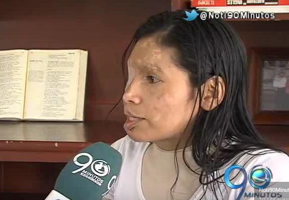 Yolima Sánchez, víctima de ataque con ácido, denuncia impunidad de su caso