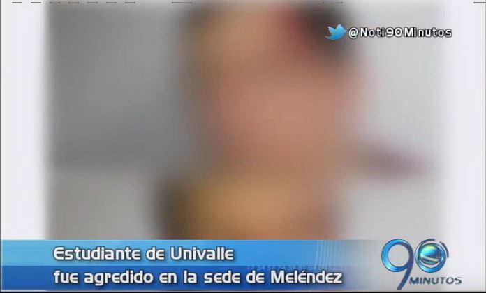 Estudiante de Univalle fue agredido en el campus Valle del Lili