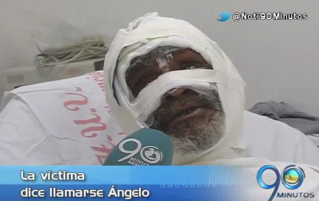 Hombre se recupera de graves quemaduras tras ser rociado con gasolina