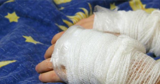 Madre acepta cargos por quemar las manos de su hija de seis años