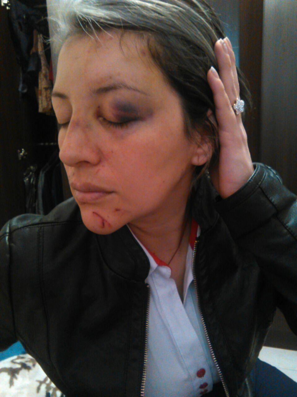 Mujer brutalmente agredida por desconocido en Pasto, denunció su caso