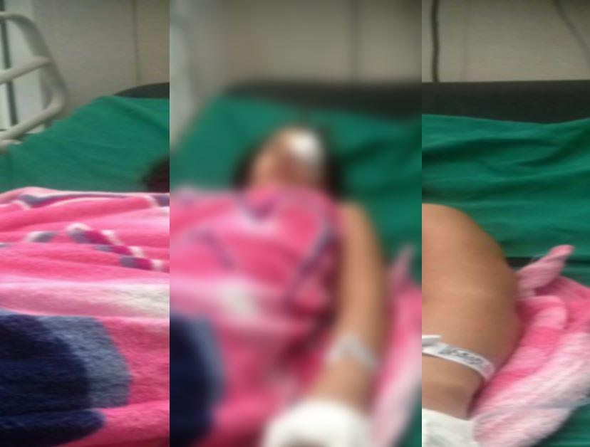 Menor de 11 años podría perder un ojo víctima de una papeleta de pólvora