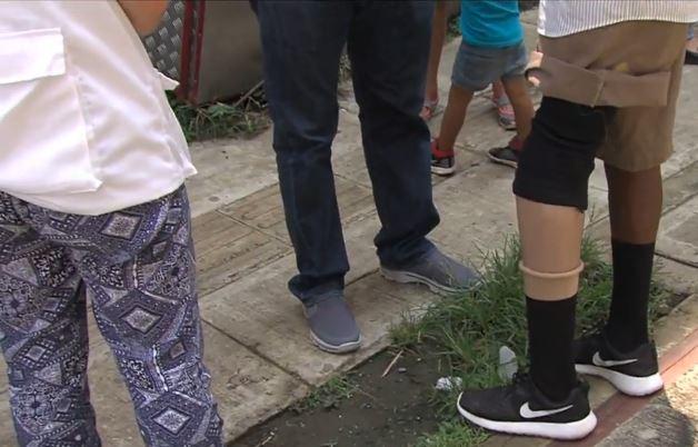 Programa de la Secretaría de Salud entregó prótesis a un hombre víctima de la violencia