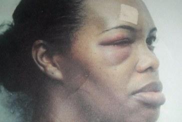 Mujer agredida durante una década por su pareja denuncia que teme por su vida
