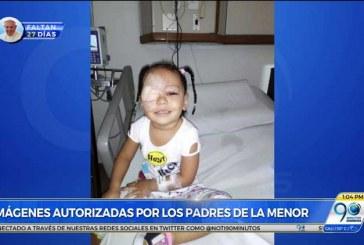 Niña de 2 años perdió un ojo por mala prestación del servicio de Cafesalud