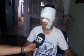 Detienen a auxiliar de policía por prenderle fuego a un menor de edad en Cali