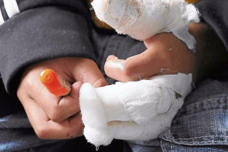 Cifra en aumento: Valle del Cauca reporta 40 casos de personas quemadas con pólvora