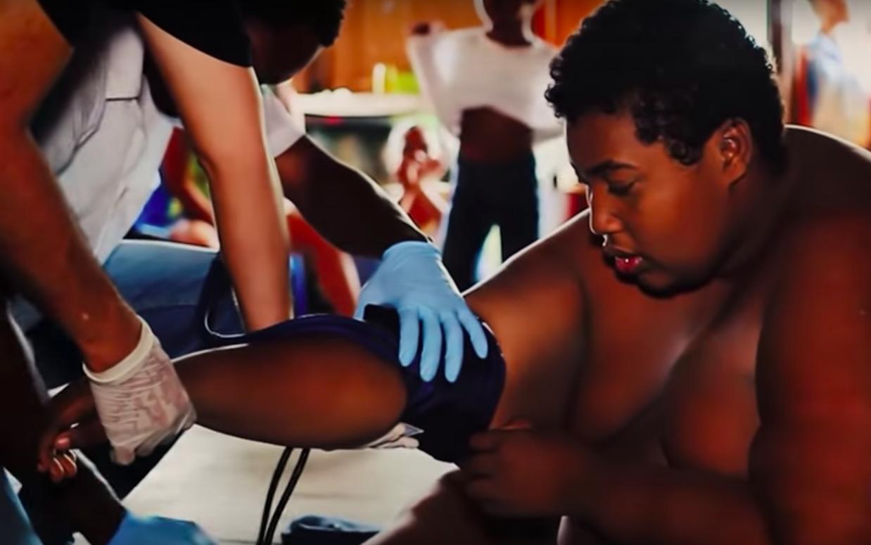 Joven nariñense con obesidad mórbida fue trasladado a Cali para iniciar tratamiento