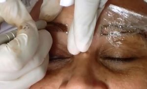 Mujer perdió la visión en uno de sus ojos luego de procedimiento estético en Cali