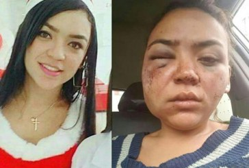 Mujer vallecaucana denuncia fuerte golpiza de su novio en Quito, Ecuador