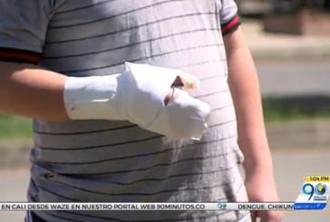 Niño de 13 años quemado con pólvora envió mensaje para que su caso no se repita