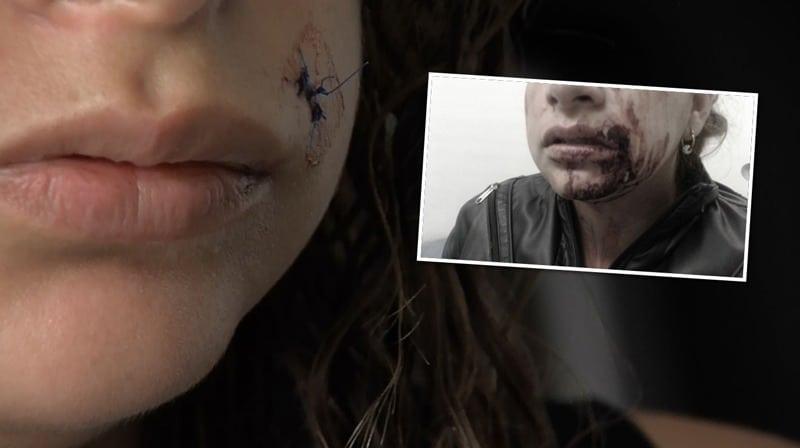 Mujer brutalmente golpeada por su expareja teme por su vida, el agresor está libre