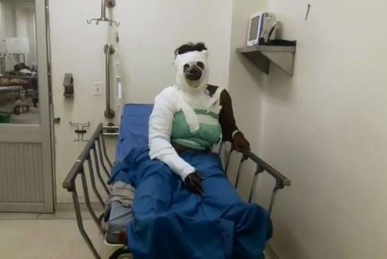 Mujer que sufrió ataque con ácido en el Cauca es atendida de urgencia en el HUV