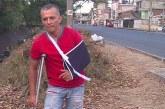 Tras ser golpeado por cable de alta tensión, motociclista dice que Emcali no le da respuesta