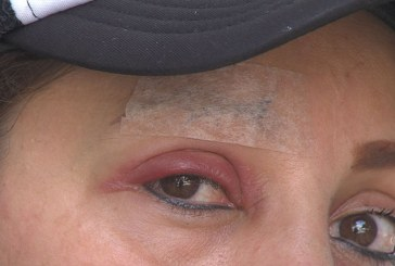 Mujer denuncia agresión de funcionario del INPEC tras defender a una amiga