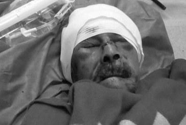 Falleció anciano de 100 años que había sido agredido por menor de 13 años