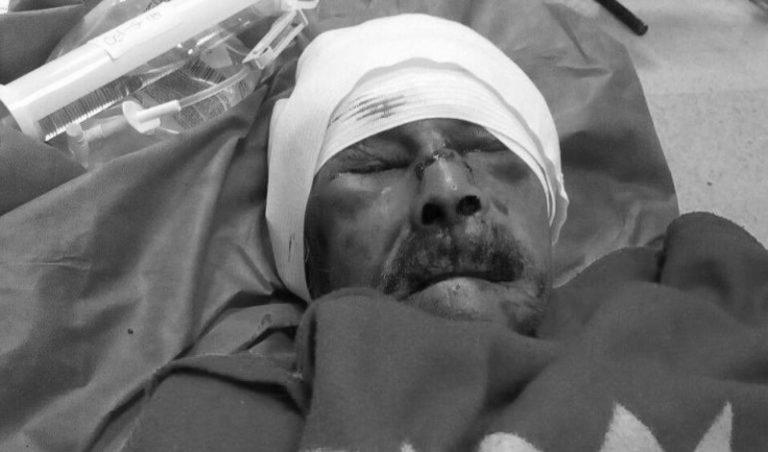 Adulto mayor que fue atacado en Siloé con arma blanca continúa en estado crítico