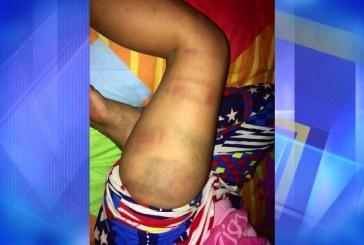 Menor que tomó 1.000 pesos de una profesora recibió fuerte golpiza de su padrastro