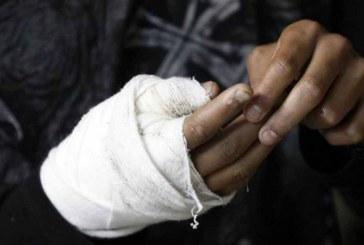 Valle continúa siendo el departamento con más casos de quemados con pólvora en el país