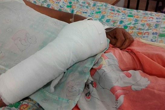Niño de 12 años perdió cuatro dedos de su mano tras manipular pólvora