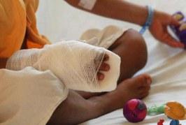 Van 34 quemados por pólvora en el Valle, de ellos, 14 son menores de edad