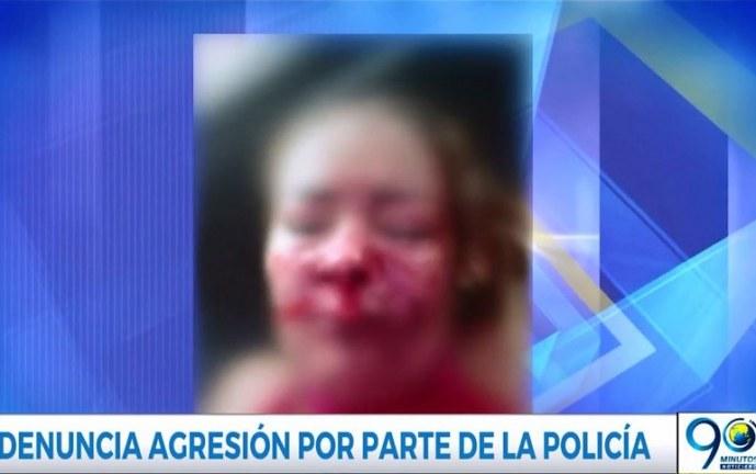 Mujer en Cali asegura que un policía la golpeó brutalmente con una patada en su rostro