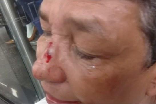 Por 30 mil pesos, gota a gota golpeó brutalmente a mujer de 60 años en Cali