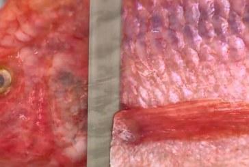 En Cali se realizó la primera construcción de vagina con piel de tilapia