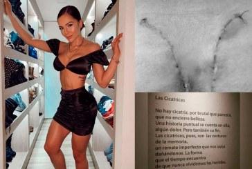 Lina Tejeiro mostró las cicatrices en sus glúteos tras ser operada por biopolímeros