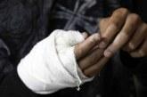Siguen registrándose lesionados por pólvora en Cali