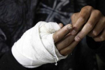 88 personas quemadas con pólvora dejó la temporada decembrina en el Valle