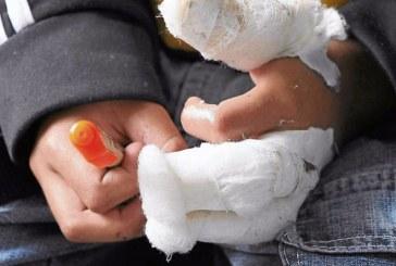 Primeros lesionados con pólvora en el departamento del Cauca