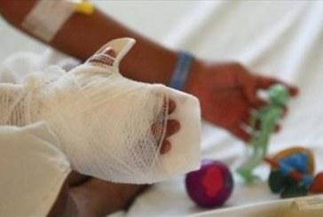 Gobernación insiste en evitar el uso de pólvora, ya son 26 las personas quemadas