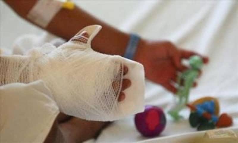 En menos de dos semanas, se reportan 10 casos de personas quemadas por pólvora en Cali